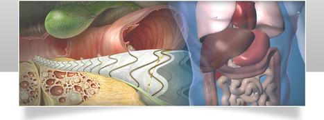 Best Gastro Surgery in Kolkata | Health | Scoop.it