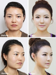 South Korean Plastic Surgery Costs and Clinics   Celebrities beauty tips   Scoop.it
