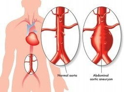 Abdominal Aortic Aneurysm Symptoms, Causes, Diagnosis And Treatment - Natural Health News | Vascular pathology | Scoop.it