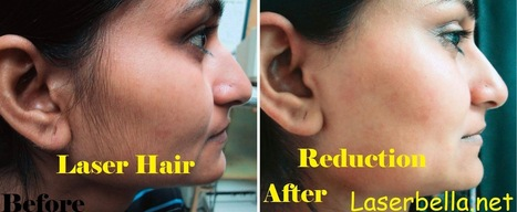 Laser Hair Removal Treatment comes up a smooth hair free skin | Laser Hair Removal | Scoop.it