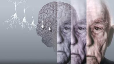 Alzheimer's breakthrough: Cure or hype? | Dementia Care | Scoop.it