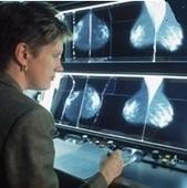 CANCER du SEIN : Mal suivre son traitement accroît de 20% le risque de décès | A quel sein se vouer ? | Scoop.it