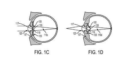 Google patent filing proposes device in eye to address poor vision | Amazing Science | Scoop.it