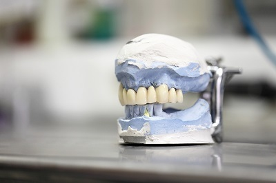 Improve Your Smile and Confidence with Dental Implants in Philadelphia | Dr. Anthony Farole, D.M.D. | Scoop.it