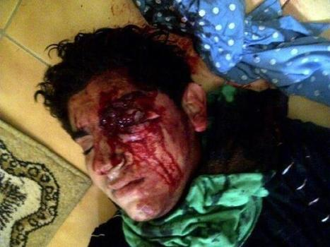 Al-Khalifas half-blind this youth! ....All for asking for his rights! | Human Rights and the Will to be free | Scoop.it