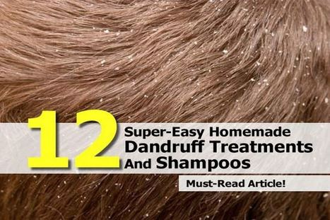 12 Homemade Dandruff Treatments & Shampoos | How To Have A Better Sex Life | Scoop.it