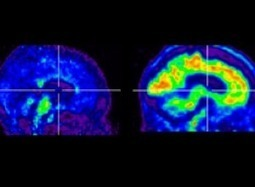 Drug To Diagnose Alzheimer's Disease Receives FDA Approval | Longevity science | Scoop.it