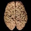 Understanding the brain | Wellcome Trust | brain stuff | Scoop.it