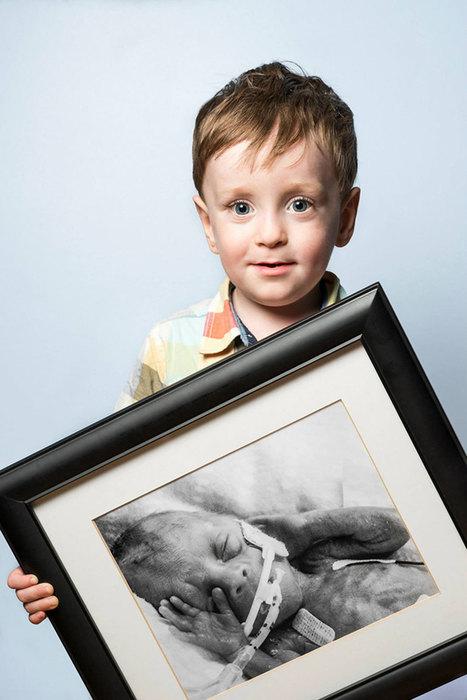 Avant / Après : 25 portraits saisissants d'enfants nés prématurément | SooCurious | 694028 | Scoop.it