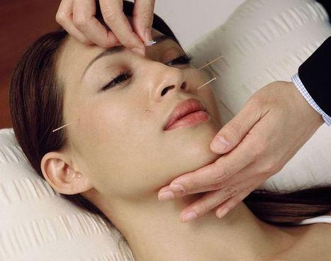 Acupuncture for skincare | Acupuncture | Scoop.it