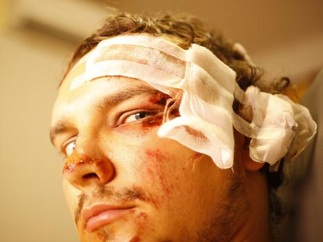Concussion symptoms now detectable using smartphones | Brain Injury | Scoop.it