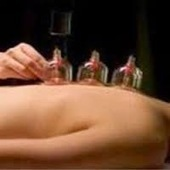 Hijama Cupping Therapy Cures Blood Disorders and Many More ~ How to get hijama therapy in UK | Hijama therapy UK | Scoop.it