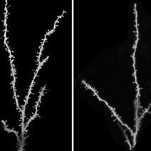 Children With Autism Have Extra Synapses : DNews | Autism | Scoop.it
