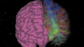 Google en route vers la neuro-révolution ? | Agence BWA - Veille | Scoop.it