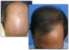 Dr. Glenn M. Charles, DO : Surgical Vs Non Surgical Hair Replacement in Boca Raton, FL | Dr. Glenn M. Charles, DO | Scoop.it