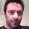 Hugh Jackman posts warning after skin cancer scare | English magazine | Scoop.it