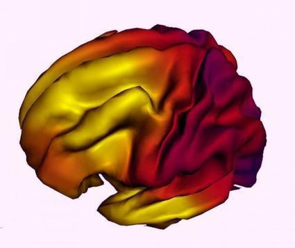 Family income, parental education related to brain structure in children and adolescents | Sustain Our Earth | Scoop.it