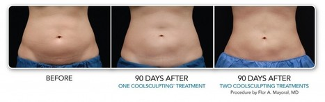 Coolsculpting: Fat Freezing Alternative | Non Surgical Liposuction | Beauty | Scoop.it