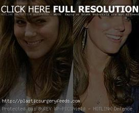 Kate Middleton Plastic Surgery Before and After Pictures | Plastic Surgery Before and After Photos | Scoop.it