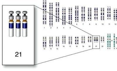 Corrección de la trisomía 21 en célulasmadre | downberri | Scoop.it