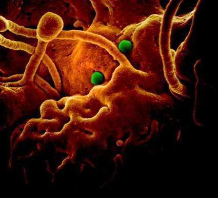 First-ever possible treatments for MERS | Sustain Our Earth | Scoop.it