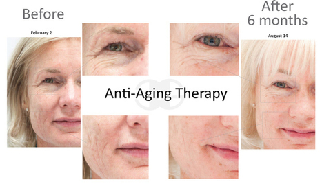Anti Aging Treatment | Stem Cell Treatment | Scoop.it