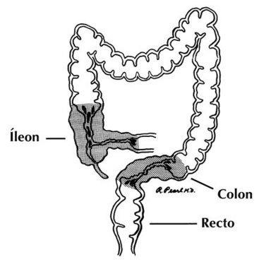 Enfermedad De Crohn | Biologia humana | Scoop.it