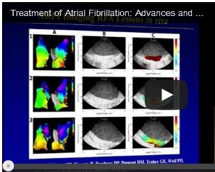 VIDEO: Treatment of Atrial Fibrillation: Advances and Controversies | dukecardiologyfellows | Caring for the Patient with Atrial Fibrillation | Scoop.it