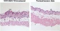 Multipotent Stem Cell Proteins Support Soft Tissue Regeneration - PR Web (press release) | Stem Cell Regenerative Medicine | Scoop.it