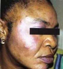 Dépigmentation : Faut-il être forcément « claire » pour être belle ? - maliweb.net | Depigmentation en Afrique de l'ouest | Scoop.it