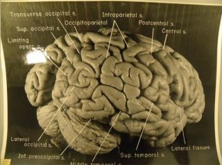 Einstein's brain reveals clues to genius - Fox News | Neuroscience and Learning | Scoop.it