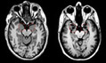 Fearless brain-damaged patients are terrified of suffocation | Brain, emotions and neuroscience | Scoop.it