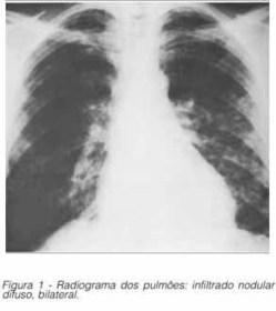 Revista da Sociedade Brasileira de Medicina Tropical - Coccidiodomycosis: a new Brazilian case   COCCIDIOIDES IMMITIS   Scoop.it