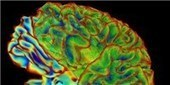 NIH Calls for BRAIN Proposals | The Scientist Magazine® | The Subjective World: Consciousness&Mind&Thinking | Scoop.it