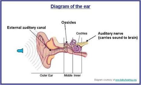 ISDH: Types of Hearing Loss   Audition   Scoop.it