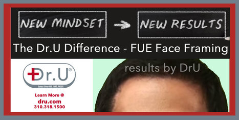 DrU Difference: FUE Facial Framing | Hair Loss, Baldness and Hair Transplants | Scoop.it