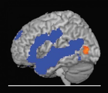 Study shows remarkable adaptability of our brain's vision center - The Hub at Johns Hopkins | Fit for life and work | Scoop.it