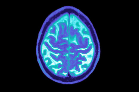 Your Brain Can Help Scientists Find Cure for Alzheimer's - Bloomberg | Neuroscience | Scoop.it