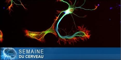 EN IMAGES. Les neurones comme vous ne les avez jamais vus | Veille scientifique Neuroscience | Scoop.it