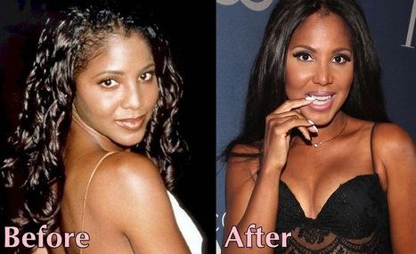 Toni Braxton Plastic Surgery - Successful Breast Implants & Nose Job | PlasticSurgeryPics.org - All About Celebrities | Scoop.it