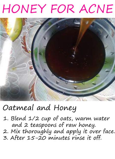 Is Honey Good for Acne? - Skin Disease Remedies   Skin Disease Remedies   Scoop.it