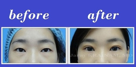 Upper Eyelid Blepharoplasty Thailand | Bangkok Aesthetic Surgery Center | The Best Plastic Surgery Clinic In Thailand | Scoop.it