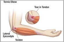 Tennis Elbow In India | Frozen Shoulder In India |Gujarat | Ahmedabad | Scoop.it