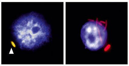 Dissection d'une infection bactérienne au niveau d'une seule cellule - Un article de Le Blog d'Albert Amgar | Microbiologie, Hygiène et Sécurité des aliments | Scoop.it