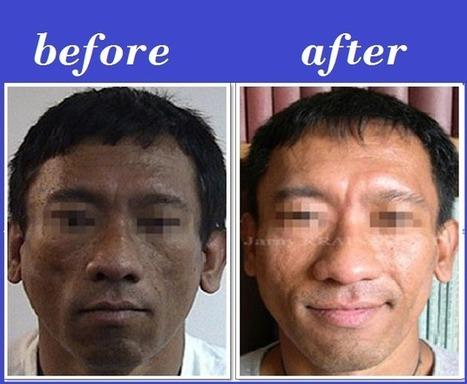 Lipo-atrophy Bio-alcamid Injection | Bangkok Aesthetic Surgery Center | Bangkok Aesthetic Surgery | Scoop.it