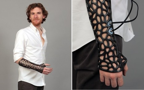 3D printed cast could heal bones 40 per cent faster - Telegraph | 3D-Print Tech | Scoop.it