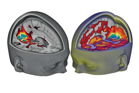 Así se reconecta el cerebro durante un 'viaje' de LSD | Simbiosis entre Filosofía y Ciencia | Scoop.it