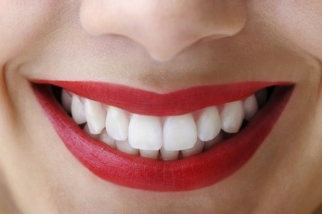 All Different Types of Cosmetic Dentistry | Dental Clinic | Scoop.it