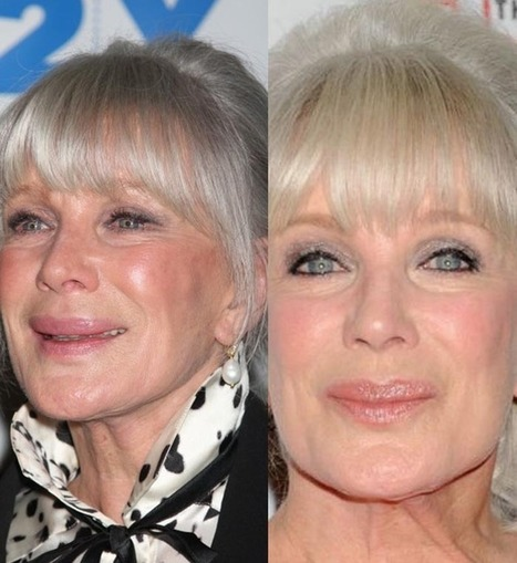 Linda Evans: Ageing Gracefully in Plastic Surgery | Celebrity Plastic Surgery | Scoop.it