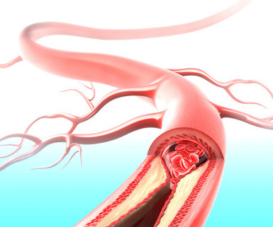 Did workplace head injury cause aneurysm 5 months later?   WORKERS' COMPENSATION   Scoop.it